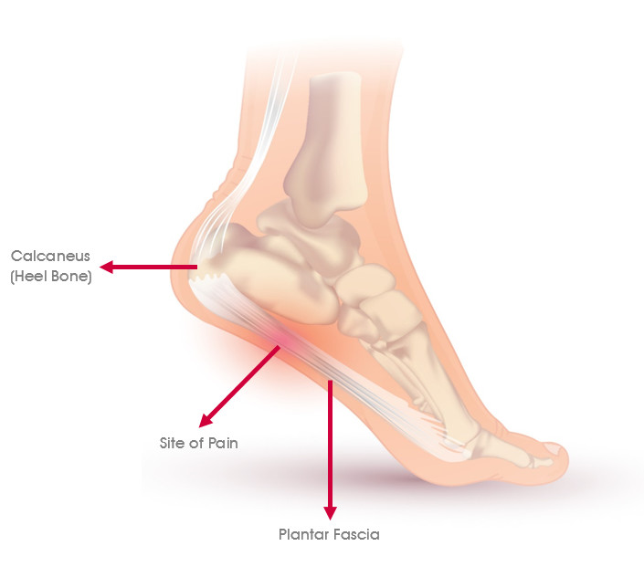 Occupational Plantar Fasciitis Claims Deconstructed